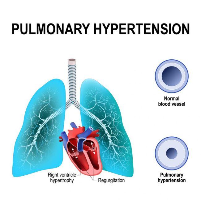 hypertension vasodilators dizziness