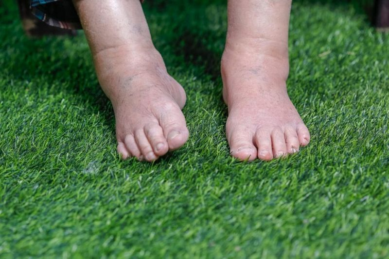 Swollen Ankles Edema