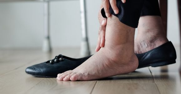 10 Causes of Swollen Ankles