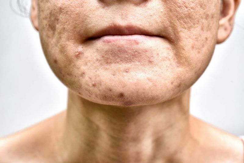 acne pores