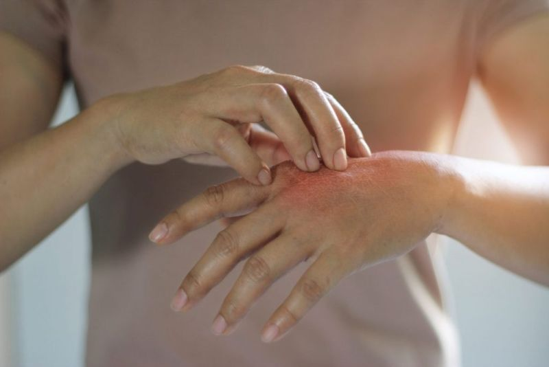 Itchy Hands Symptoms