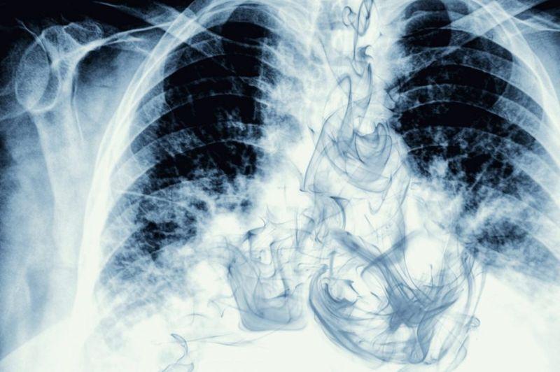 respiratory inhalation exhalation