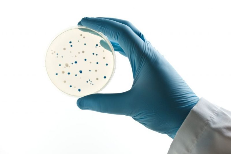 Bacterial Infection Testing
