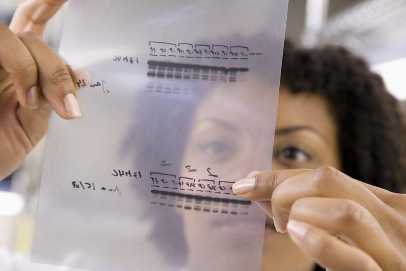 genetic test results Factor V Leiden