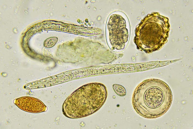 helminths parasitic worms