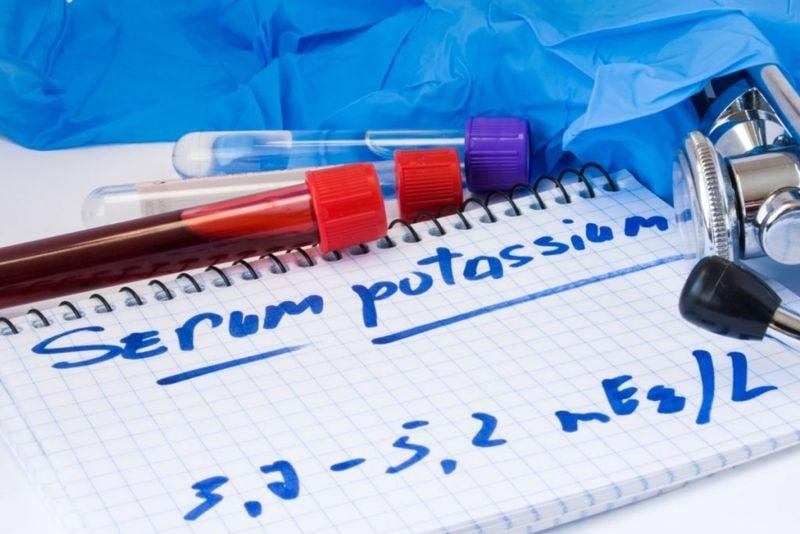 Hypokalemia low-potassium metabolic-alkalosis