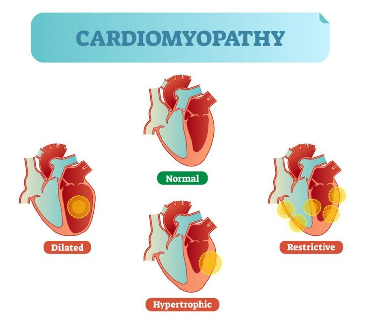 cardiomyopathy coronary