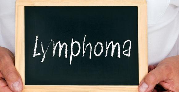 10 Symptoms of Lymphoma