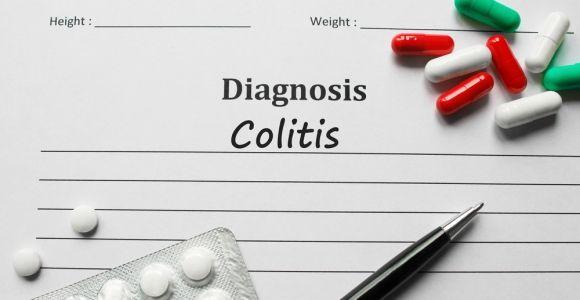 10 Symptoms of Colitis