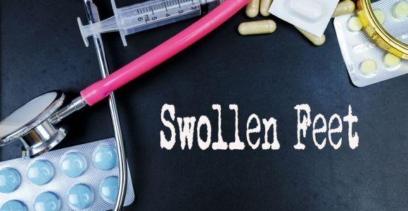 10 Causes of Swollen Feet