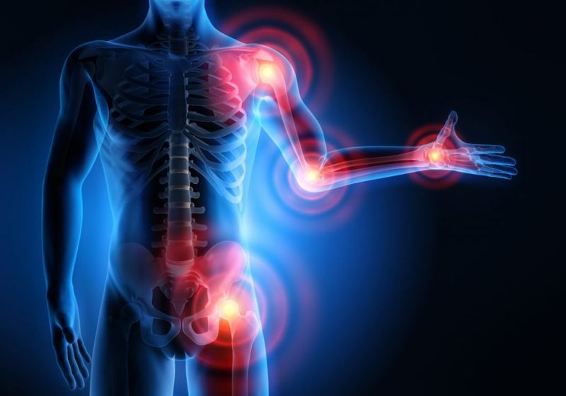 Preventing Rheumatoid Arthritis Smoking Diet