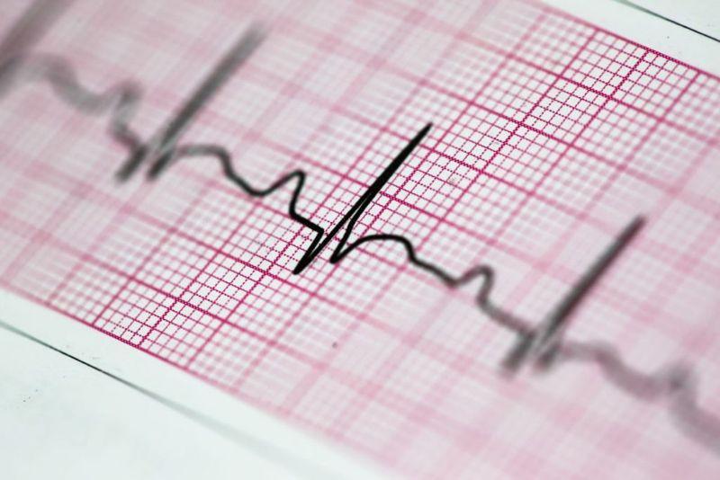 ECG Echocardiogram Tracing PQRST