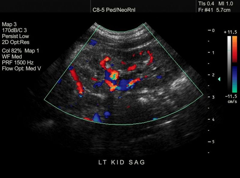 renal ultrasound, diagnosis, imaging tests