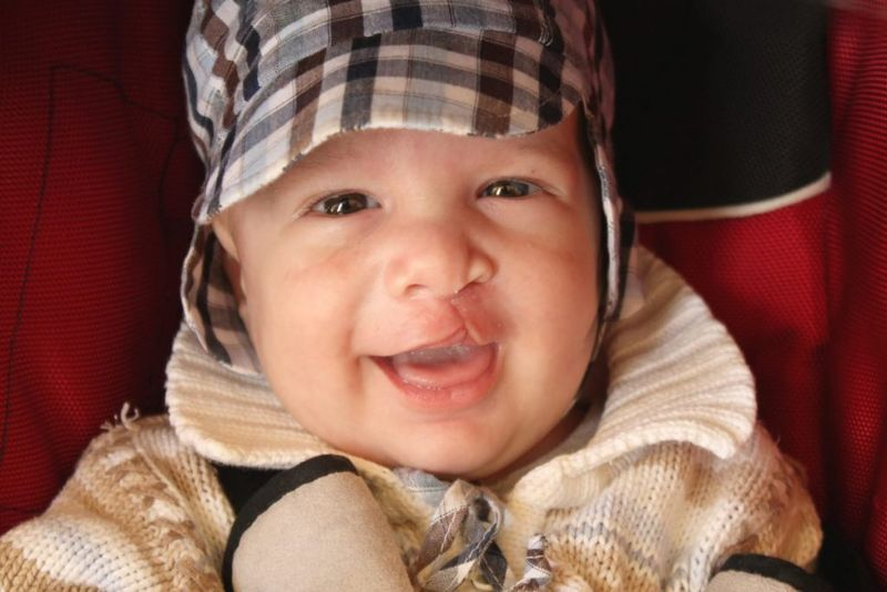 cleft palate pierre robin sequence