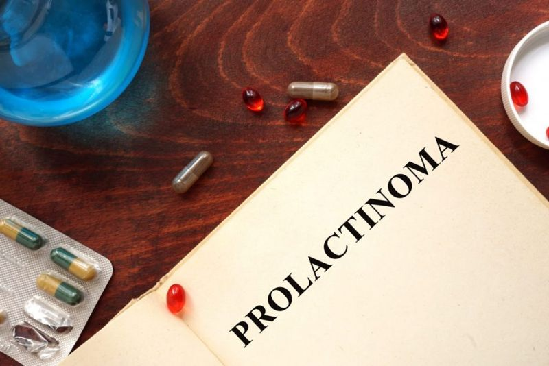 Prolactinoma adenoma tumor