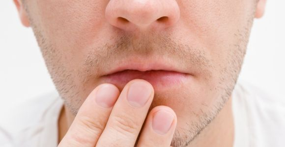 Clearing Up Cold Sores With Home Remedies
