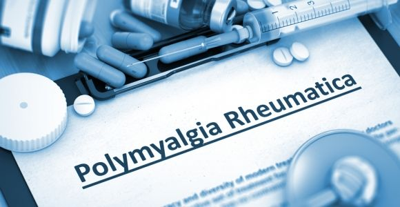 10 Symptoms of Polymyalgia Rheumatica