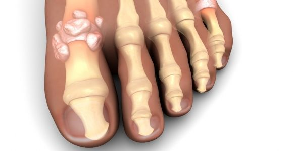 Short and Long Term Complications of Gout
