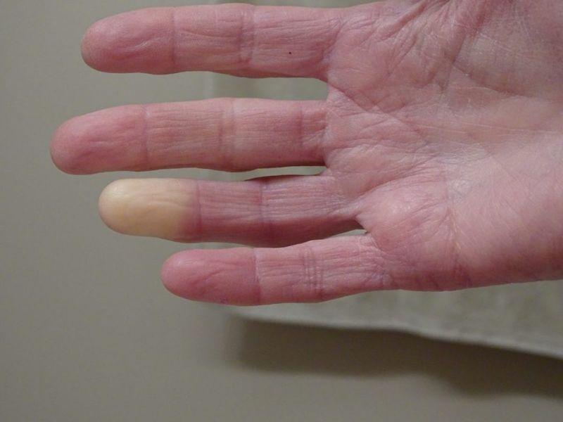 Raynaud Syndrome Phenomenon