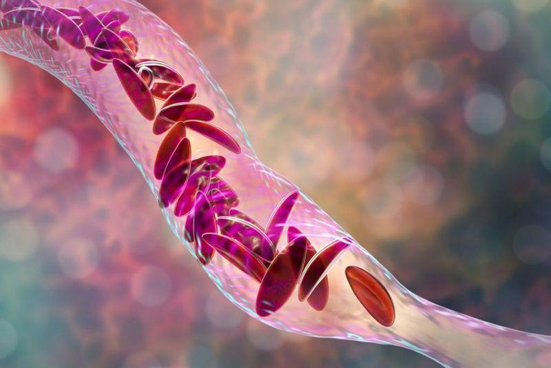 Sickle-cell-disease stuttering-priapism