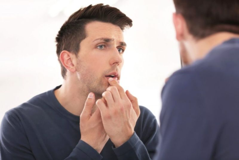 Caused by cold sore virus