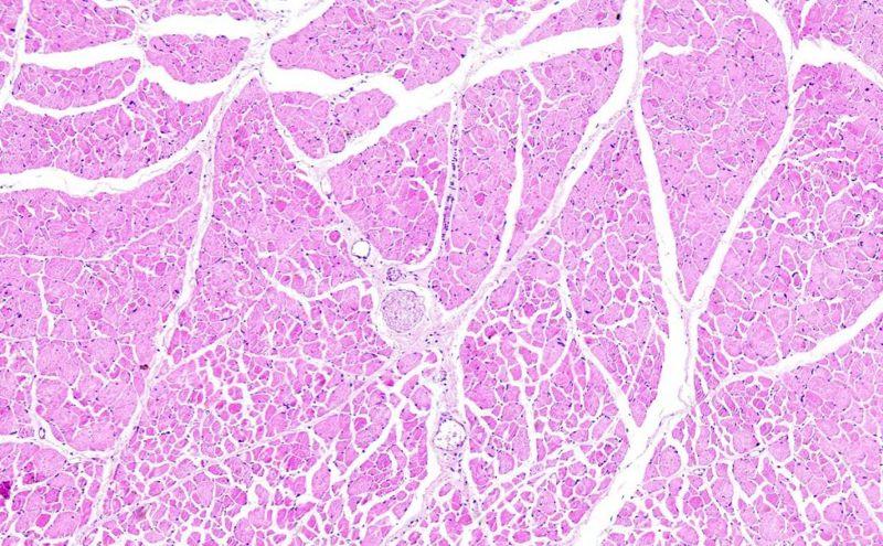 Biopsy of tissue under microscope
