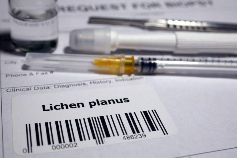 Lichen Planus Related Diseases