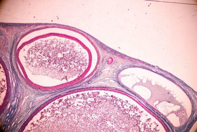 mittelschmerz ovulation pain