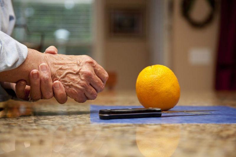 pain in hands arthritis inflammation