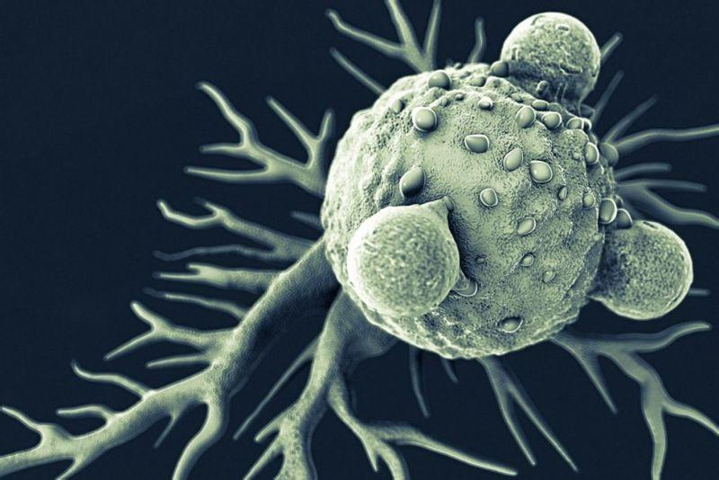 lymphocyte plasma cell overgrowth POEMS