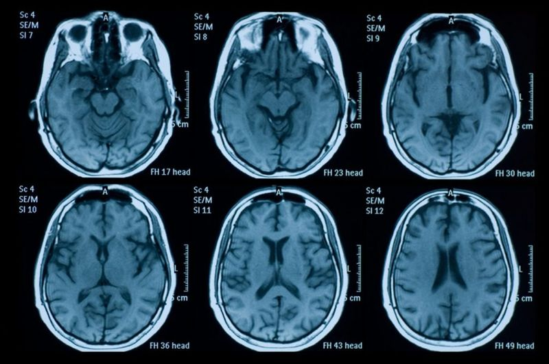 brain degeneration infant type A