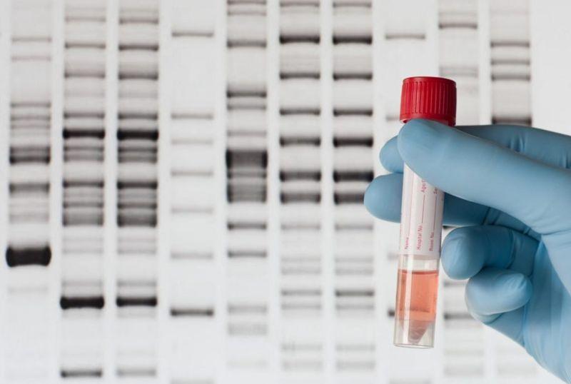 Hyperuricemia genetic testing diagnosis