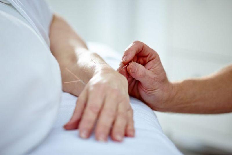 botox biofeedback acupuncture