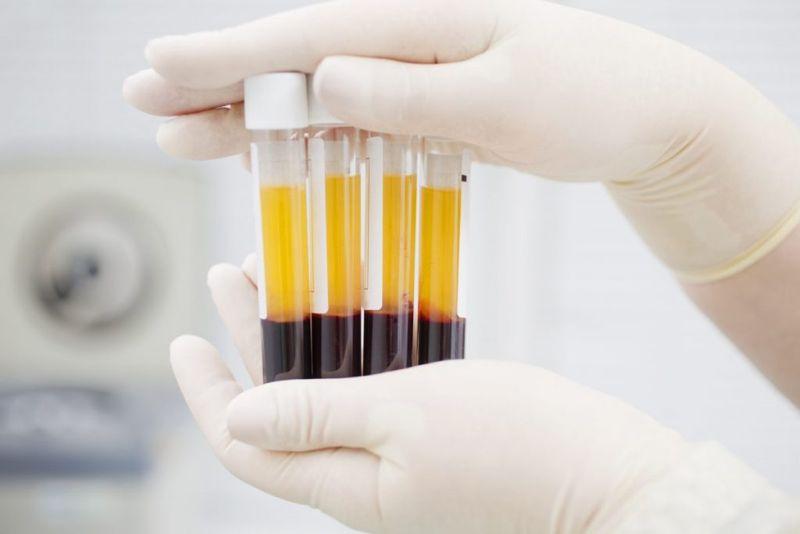 blood plasma overgrowth