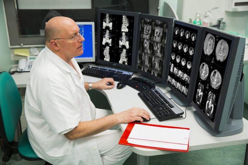 Radiologist examining x-ray images