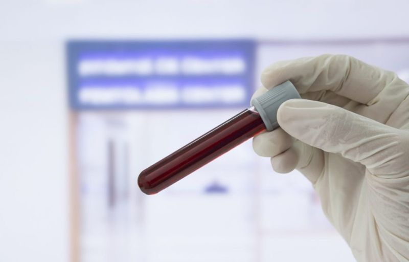 Diagnosis Blood Test