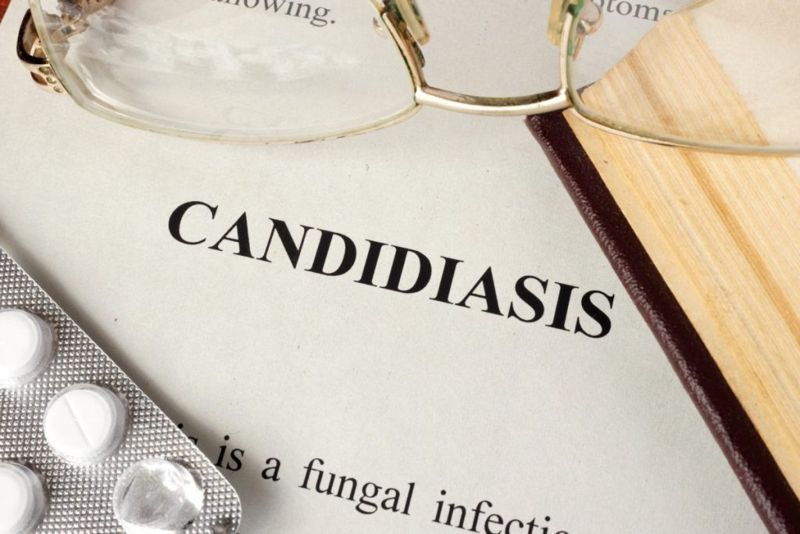 Candida Thrush Candidiasis