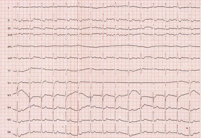 diagnosis ECG heart rate rhythm