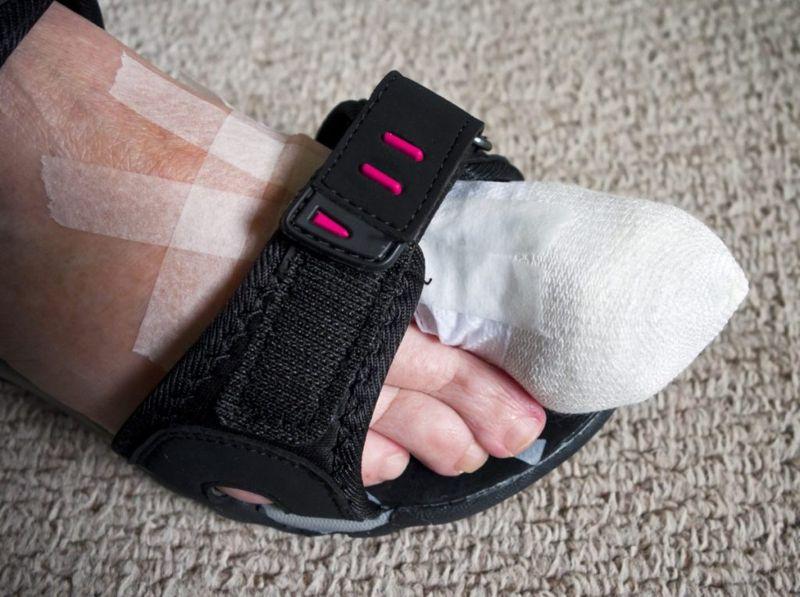 comfortable shoes sandals ingrown toenail