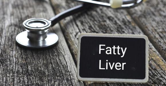 10 Symptoms of Fatty Liver Disease