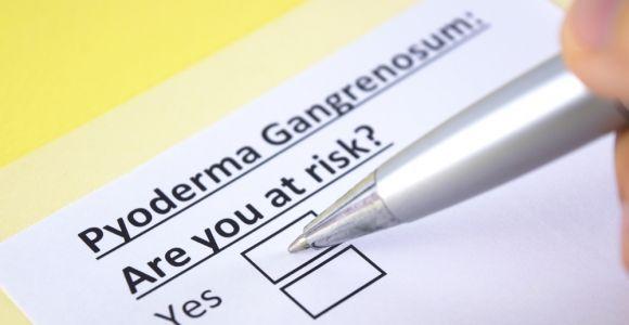 Pyoderma Gangrenosum Is an Inflammatory Skin Condition