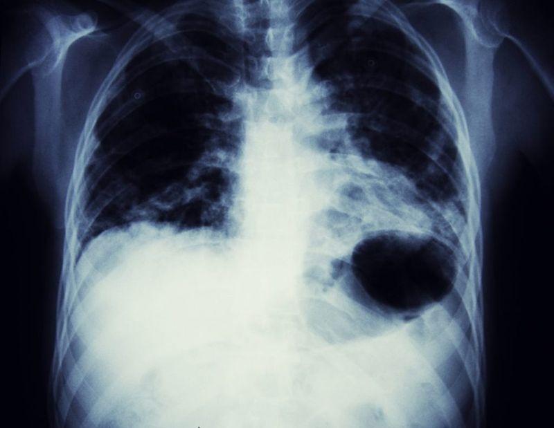 lung cancer blood phlegm