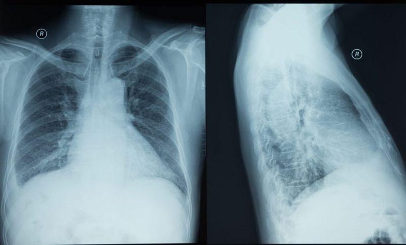 thoracentesis clotting xray