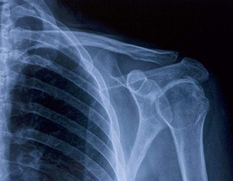 shoulder collarbone xray