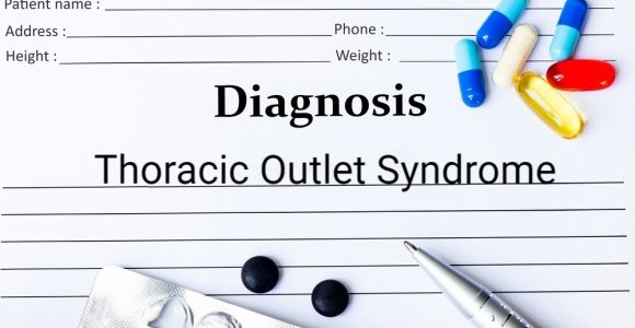 Rare Thoracic Outlet Syndrome Causes Arm and Shoulder Weakness