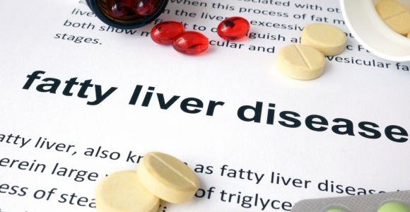 Complications of Fatty Liver Disease