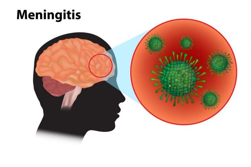 meningitis tuberculous intracranial