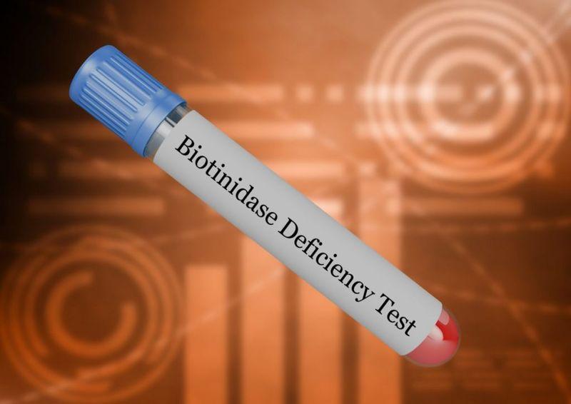 biotinidase enzyme seizures