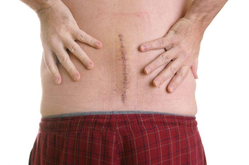 spinal fusion foraminoplasty