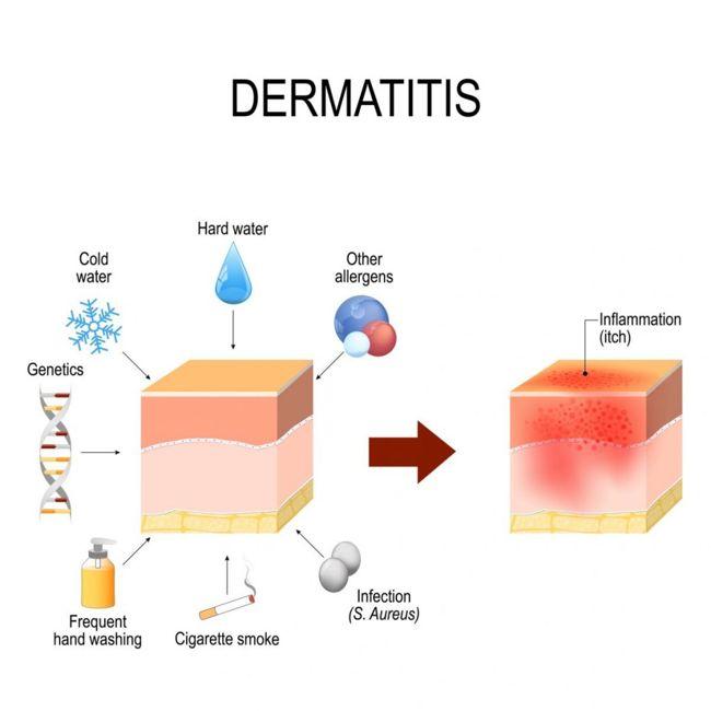 skin irritation itchiness